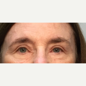 55-64 year old woman treated with Eyelid Surgery after 3399722
