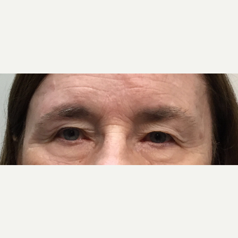 55-64 year old woman treated with Eyelid Surgery before 3399722