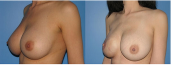 Right Breast and Nipple Reconstruction