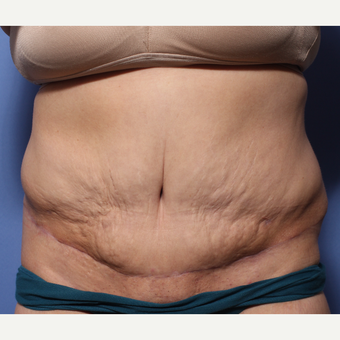 45-54 year old woman treated with Tummy Tuck after 3505873