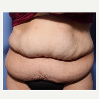 45-54 year old woman treated with Tummy Tuck before 3505873