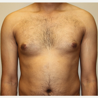 35-44 year old man treated with Male Breast Reduction before 3215435