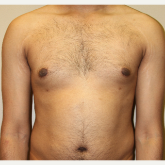 35-44 year old man treated with Male Breast Reduction after 3215435