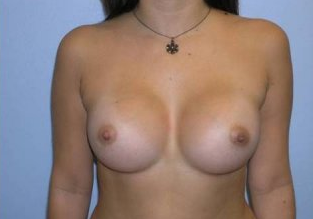 Breast Augmentation  after 256387