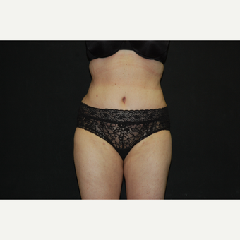 35-44 year old woman treated with Tummy Tuck after 3027406