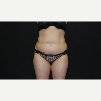 35-44 year old woman treated with Tummy Tuck before 3027406