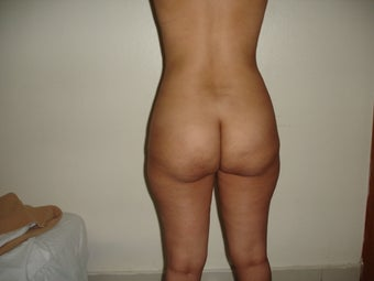 35 year old female treated with Brazilian Butt Lift before 965468