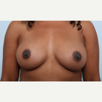Breast Augmentation after 3340219