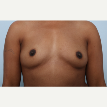 Breast Augmentation before 3340219