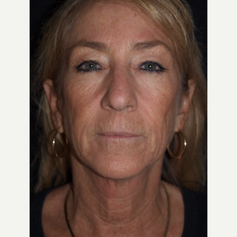 57 year old woman treated with Facelift, Upper Blepharoplasty, Fat Grafts & TCA Peel before 3773551