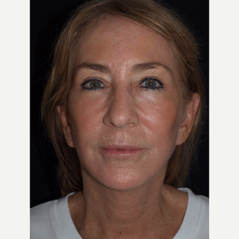 57 year old woman treated with Facelift, Upper Blepharoplasty, Fat Grafts & TCA Peel after 3773551
