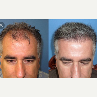 35-44 year old man treated with Hair Transplant