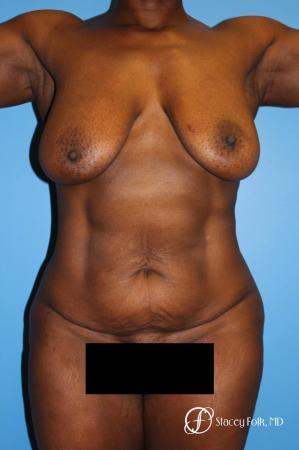45-54 year old woman treated with Mommy Makeover before 2497686