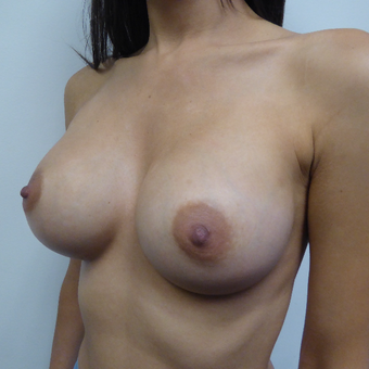 25-34 year old woman treated with Breast Augmentation after 3375576