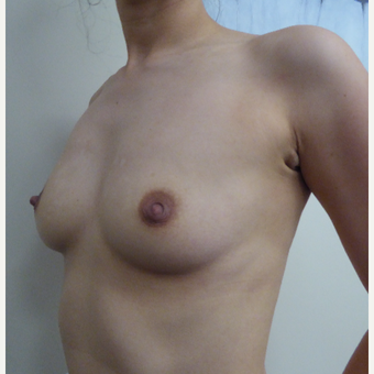 25-34 year old woman treated with Breast Augmentation before 3375576