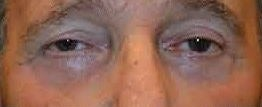 65-74 year old man treated with Eyelid Surgery after 3482754
