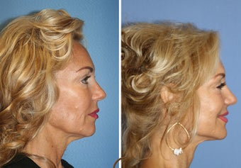 Lower FaceLift & Neck Lift Under Local Anesthesia (No General Anesthesia Needed) 251836