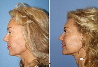 Lower FaceLift & Neck Lift Under Local Anesthesia (No General Anesthesia Needed) after 251836