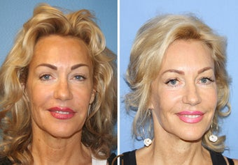 Lower FaceLift & Neck Lift Under Local Anesthesia (No General Anesthesia Needed) before 251836