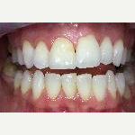 25-34 year old woman treated with Dental Bonding before 3035703
