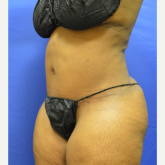 35-44 year old woman treated with Tummy Tuck after 3366189