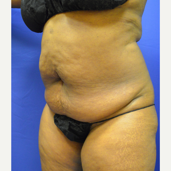 35-44 year old woman treated with Tummy Tuck before 3366189