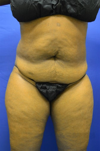 35-44 year old woman treated with Tummy Tuck 3366189