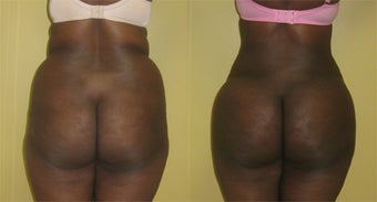 Brazilian Butt Lift in An African American Patient With a Square Buttock Deformity before 1247542