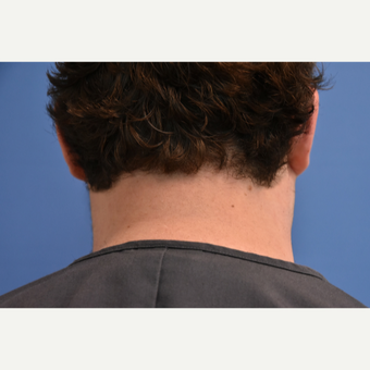 18-24 year old man treated with IPL Hair Reduction after 3211549