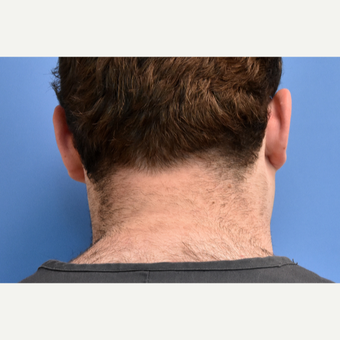 18-24 year old man treated with IPL Hair Reduction before 3211549