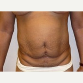 Tummy Tuck before 2599403