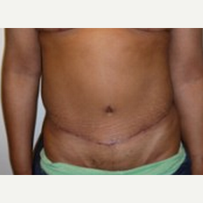 Tummy Tuck after 2599403
