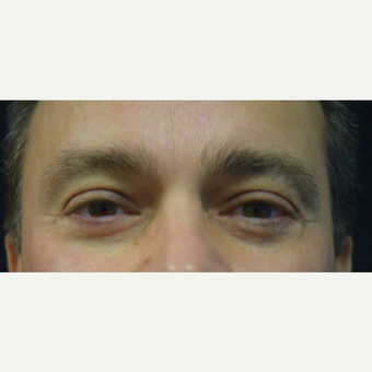 45-54 year old man treated with Eye Bags Treatment after 3684822