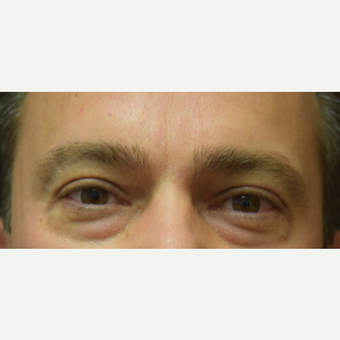 45-54 year old man treated with Eye Bags Treatment before 3684822