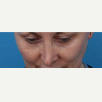 45-54 year old woman treated with Juvederm before 3340030
