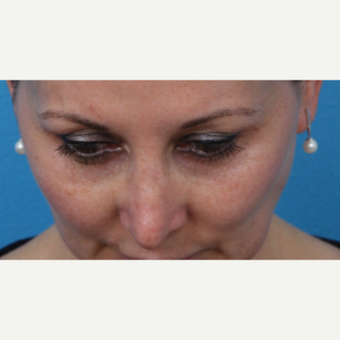 45-54 year old woman treated with Juvederm after 3340030