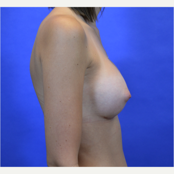35-44 year old woman treated with Breast Augmentation after 3579954