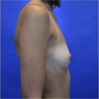 35-44 year old woman treated with Breast Augmentation before 3579954
