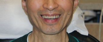 All-on-4 Dental Implants  before 1288220