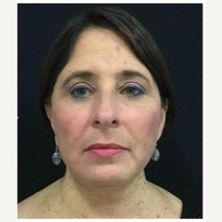 55-64 year old woman treated with Facelift after 3088074