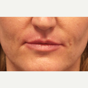 35-44 year old woman treated with Lip Augmentation after 3675188