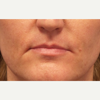 35-44 year old woman treated with Lip Augmentation before 3675188