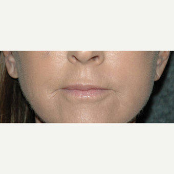 62 year old woman treated with Lip Augmentation after 3710949