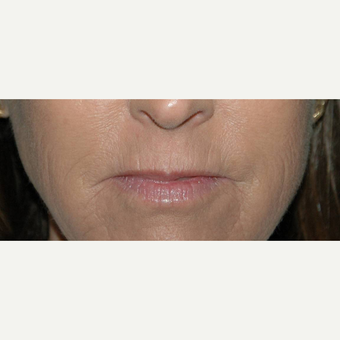 62 year old woman treated with Lip Augmentation before 3710949