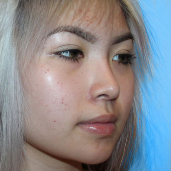18-24 year old woman treated with Asian Rhinoplasty