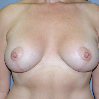 47 year old woman treated with Breast Lift after 3042730
