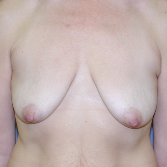 47 year old woman treated with Breast Lift before 3042730