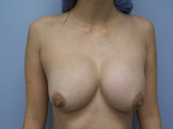 Breast Implant Removal before 981725