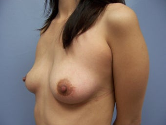 Breast Implant Removal 981725