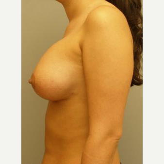 25-34 year old woman treated with Breast Lift with Implants after 3122346